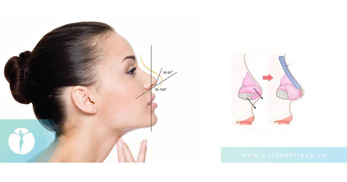 Nâng mũi bị lộ sóng chỉnh lại bằng cách nào?