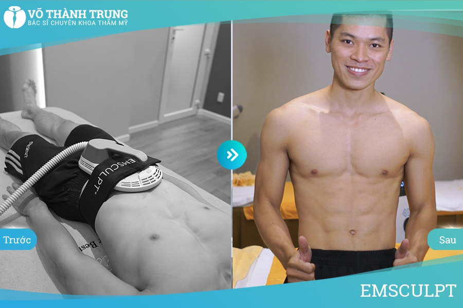 Before After Emsculpt Male