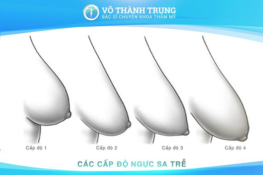 Nang Nguc Chay Xe 3