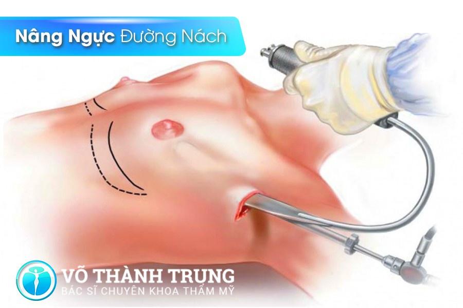 Nang Nguc Duong Nao Tot Nhat 2