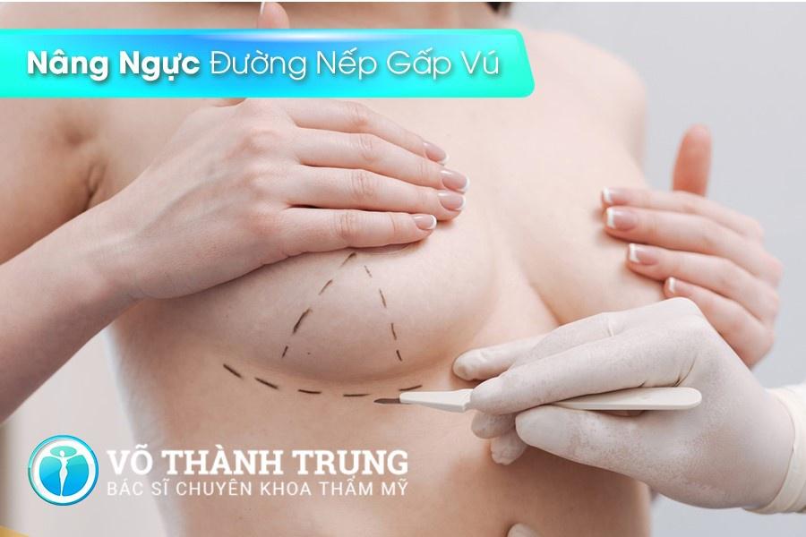 Nang Nguc Duong Nao Tot Nhat 4