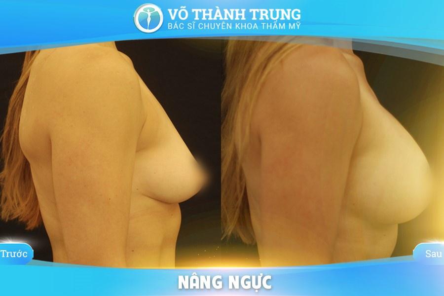 Nang Nguc Duong Nao Tot Nhat 5