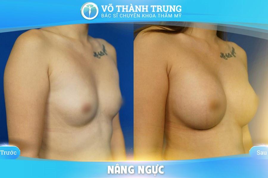 Nang Nguc Duong Nao Tot Nhat 6