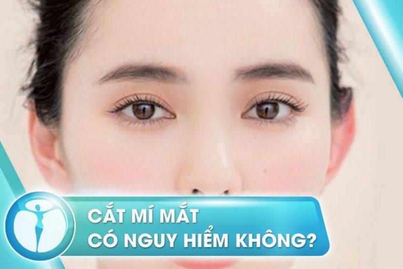 Cat Mi Mat Co Nguy Hiem Khong 1