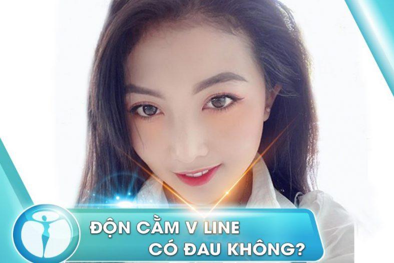 Don Cam V Line Co Dau Khong 1