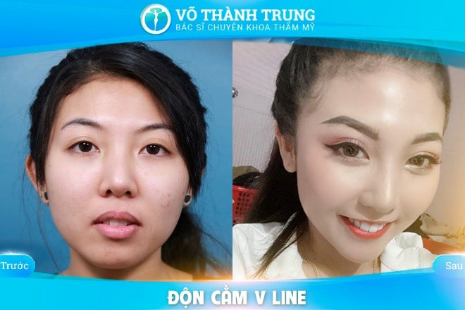 Don Cam V Line Co Dau Khong 3