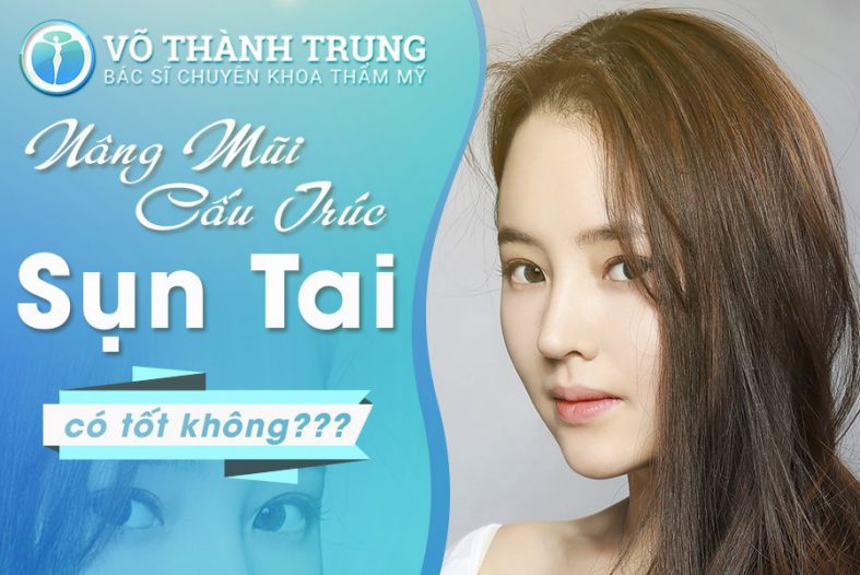 Nang Mui Cau Truc Sun Tai 1