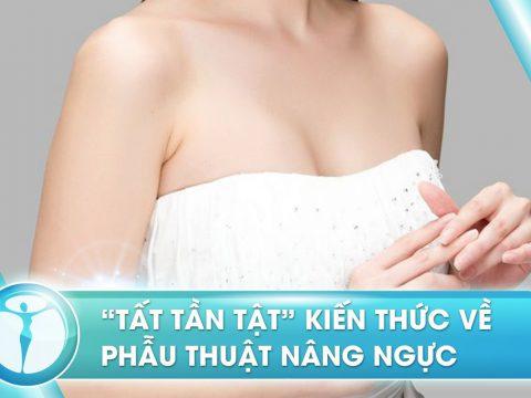 Phau Thuat Nang Nguc 1