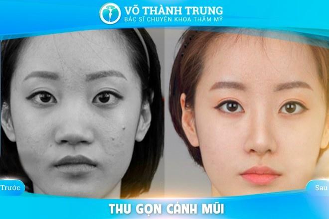 Thu Gon Canh Mui 3