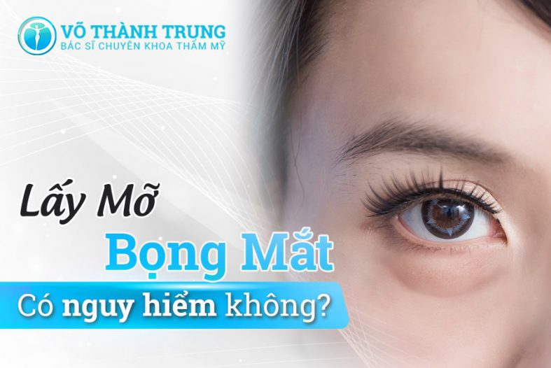 Lay Mo Bong Mat
