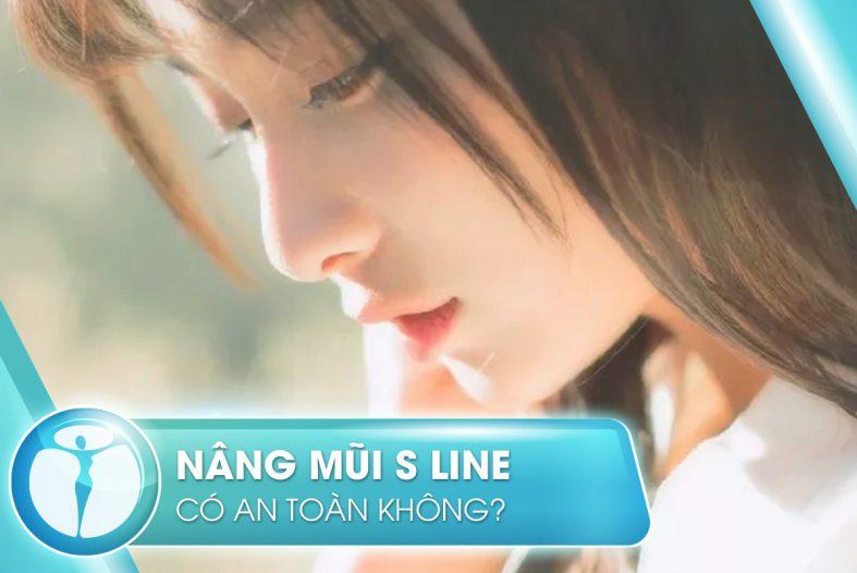 Nang Mui S Line Co An Toan Khong