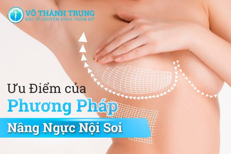 Uu Diem Cua Phuong Phap Nang Nguc Noi Soi