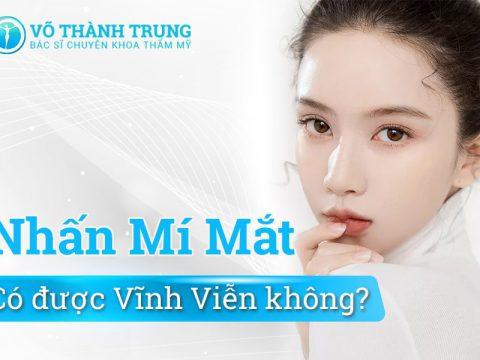 Nhan Mi Mat