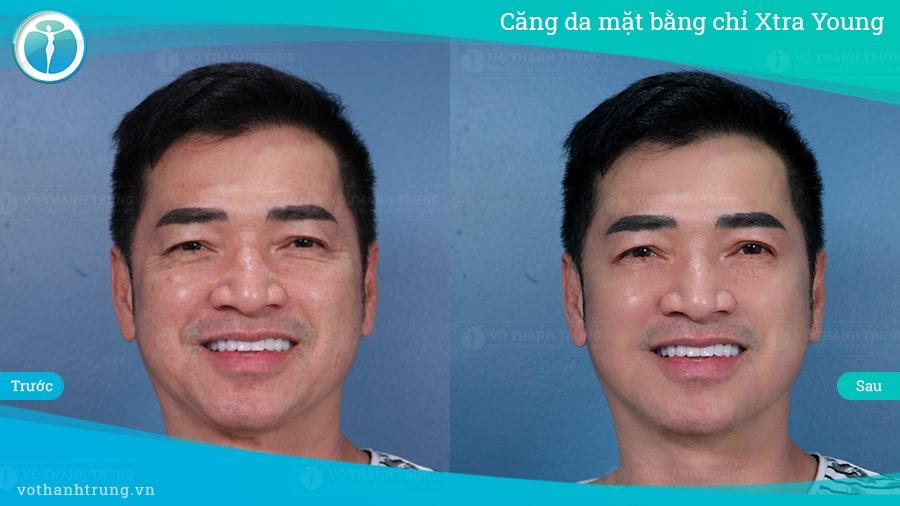 Cang Da Mat Bang Chi